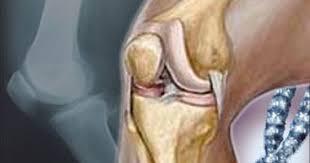 اسباب الركبة علاجها