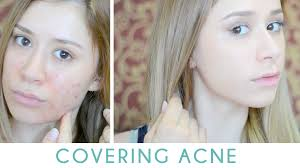 thick layers of makeup was not the ideal way on how to cover acne on a daily basis
