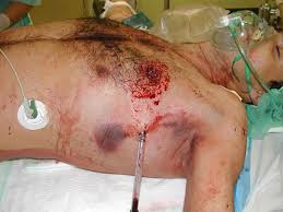 Image result for chest trauma
