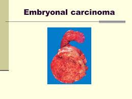 「Embryonal carcinoma」の画像検索結果