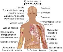 treating brain injuries stem cell transplants promising developing stem cell therapy for brain injury in human patients