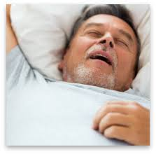 <b>Best Anti</b>-<b>Snoring</b> Mouth Guards   American Sleep Association
