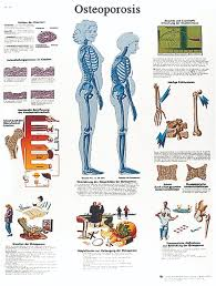 essay osteoporosis essay