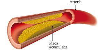 Image result for colesterol
