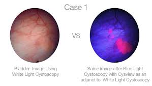<b>Blue Light</b> Cystoscopy - Mount Sinai <b>Medical</b> Center - UROLOGY