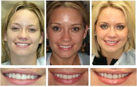 Bọc răng sứ có tác hại gì không? Images?q=tbn:ANd9GcScKy10LI1HiOkrfMUNls3C7zHcUob1-OqTPBH7iWGjvegH9nme