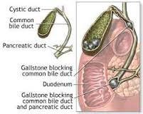 Cara pengobatan batu empedu tanpa operasi