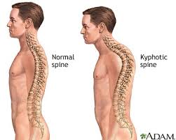 Image result for excessive thoracic kyphosis scapula