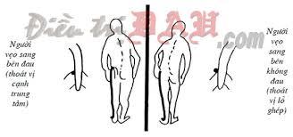 Hình ảnh trạng thái của người bệnh thoái hóa đốt sống cổ