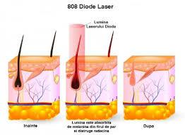 Imagini pentru epilare cu laser dioda