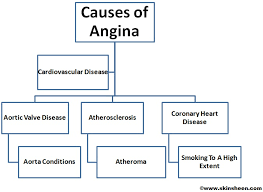 Image result for angina