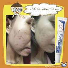 <b>Dermaklear</b> Cream Reduce <b>Acne</b>, <b>Pimples Treat</b> Steroid <b>Acne</b> Black ...