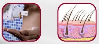 Андрогенное облысение у мужчин лечение народными средствами