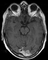 A <b>3cm wide</b> left occipital metastatic mass with oedema of the <b>white</b> ...