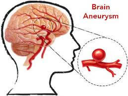 Image result for pictures of an aneurysm