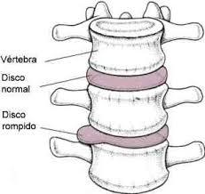 Resultado de imagem para hernia de disco