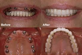 Before and after patient photos showing dental implants from the front and inside