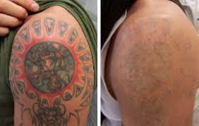 Tattoo removal 2015