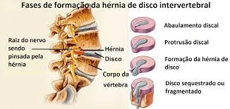 HÉRNIA DE DISCO CERVICAL - CURA E TRATAMENTOS - CLÍNICA DE MASSOTERAPIA EM SÃO JOSÉ (SC)