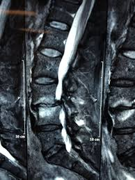 Research   Athletico       ideas about Lower Back Pain Symptoms on Pinterest   Back Pain Symptoms  Degenerative Disc Disease and Low Back Pain