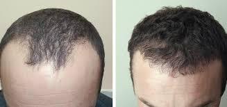 Потеря волос у мужчин полностью