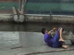 Bildresultat för croc bites man's leg off