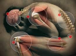 Resultado de imagem para fibromyalgia people