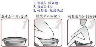 肛門保健 痔瘡 肛門廔管