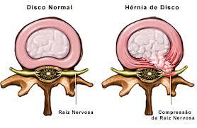 Hérnia de disco lombar (discopatia): o que é, quais os sintomas, tratamento e se existe cura.
