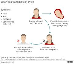 Image result for zika virus disease
