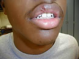 Image result for cold sore blacks