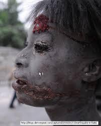 Resultado de imagem para imagens do haiti no terremoto
