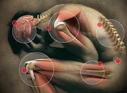 Resultado de imagen de sintoma