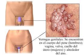 Eliminar verrugas genitales