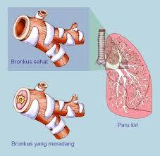pengobatan bronkitis akut