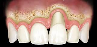 Risultati immagini per parodontologia