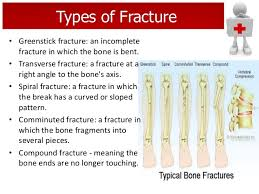 Image result for first aid for fractures steps