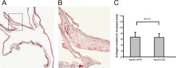 Immunohistochemistry for collagen type I. Expression of collagen ...