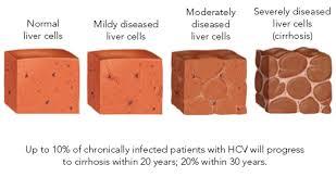 Totul despre hepatita C