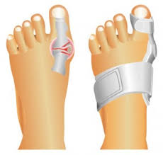 bunion relief image