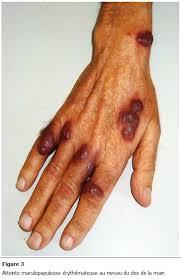 Risultati immagini per sarcome kaposi