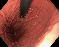 The <b>Stomach</b> and Its Role in Digestion | Laparoscopic.MD