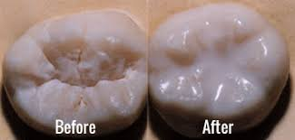 Image result for dental sealants before and after