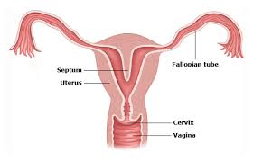 the picture of septate uterus shown in women's reproductive system