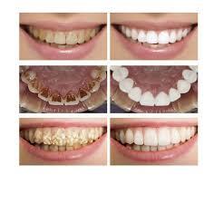 Голубой <b>отбеливающий</b> лосьон LANBENA для чистки <b>зубов</b> ...