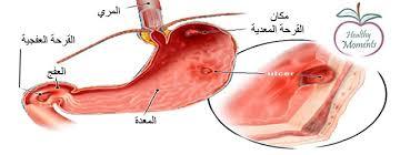 المعدة,اسباب الاصابة المعدة,اعراض images?q=tbn:ANd9GcT