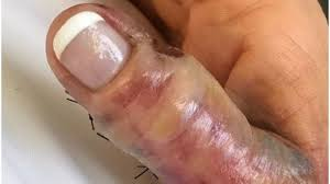Tennessee woman says she contracted flesh-eating bacteria from ...