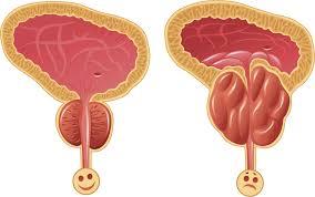 Resultado de imagem para prostate normal and no