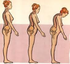 tips mengobati osteoporosis|herbal alami