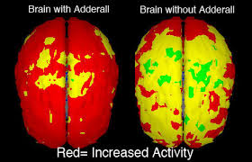 Pro Adderall   Pro     s and Con     s of Adderall As